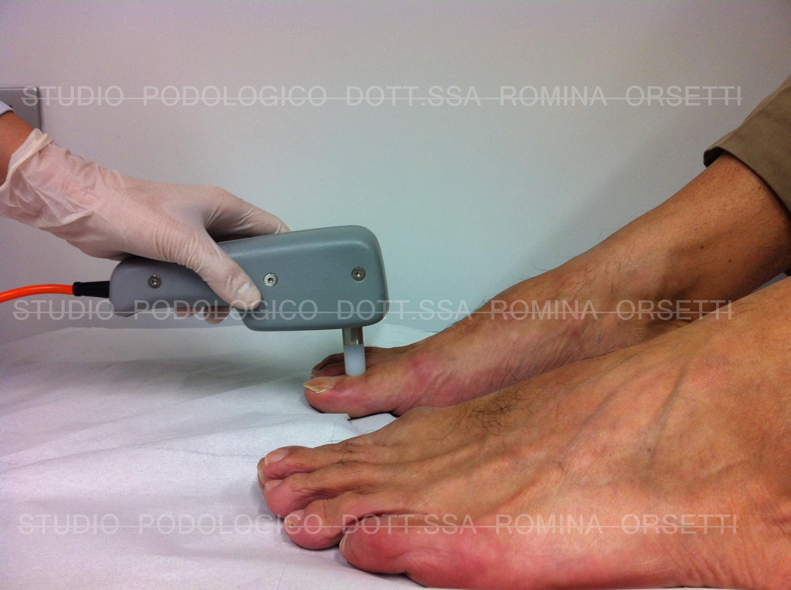 Indice pressorio caviglia braccio